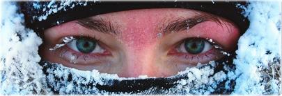 هیپوترمی و سرمازدگی